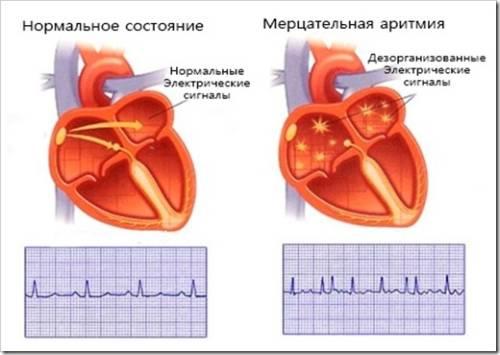 Причины и симптомы мерцательной аритмии