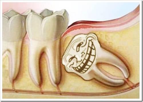 Удаление зубов мудрости показано не всегда