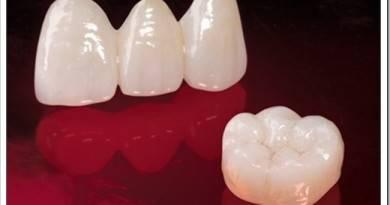 Безметалловые вкладки E-Max – новейшее достижение современной стоматологии