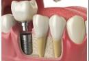 Как подготовиться к имплантации зубов и как она делается