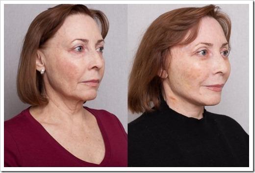 Маммопластика и круговая подтяжка лица