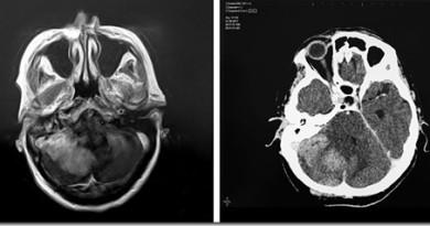 В чем разница между КТ и МРТ